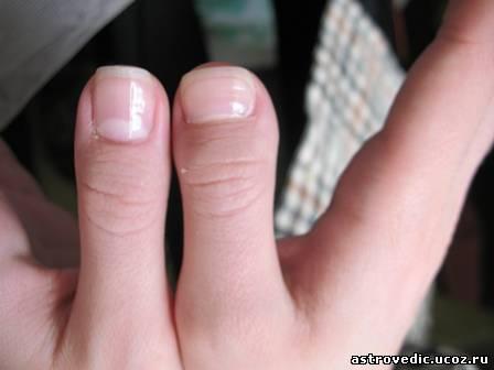 Хиромантия родинки на подушечках пальцев
