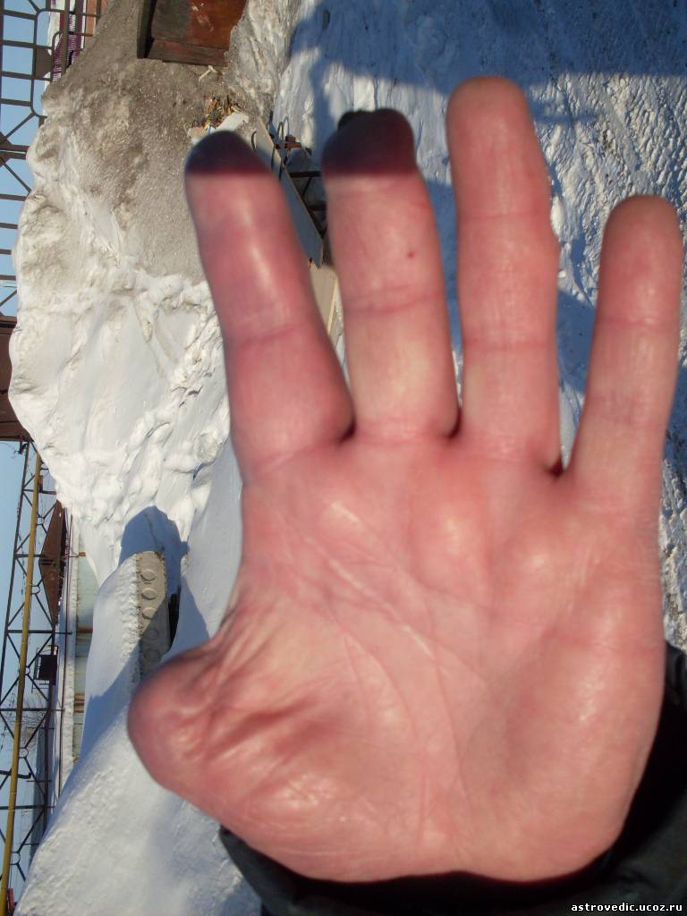 Руки без пальцев фото