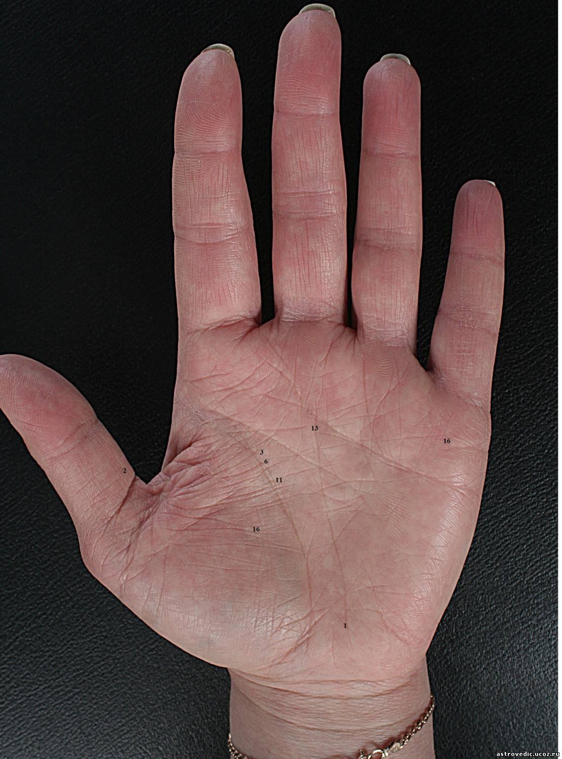 Фото лопатообразной руки