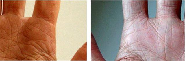жилы располагаются кольцо соломона на руке фото вполне себе удачный